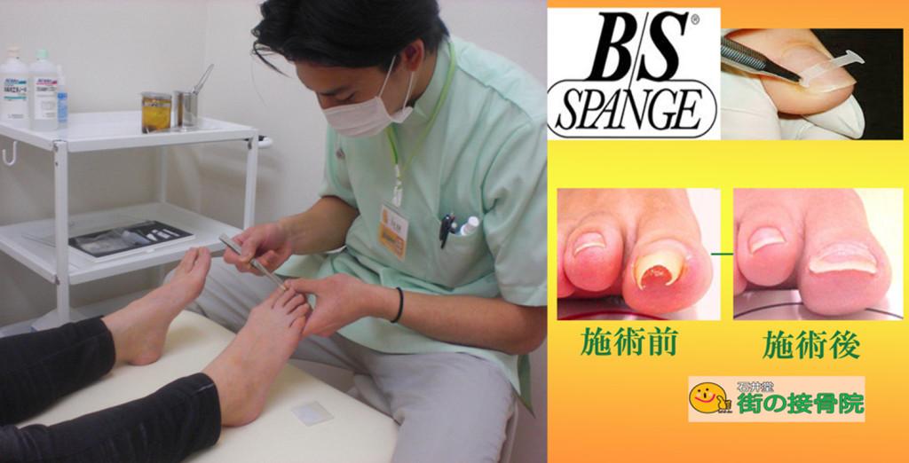 巻き爪矯正治療院東京杉並世田谷の石井堂へ | 病院の医師も通う巻き爪治療院