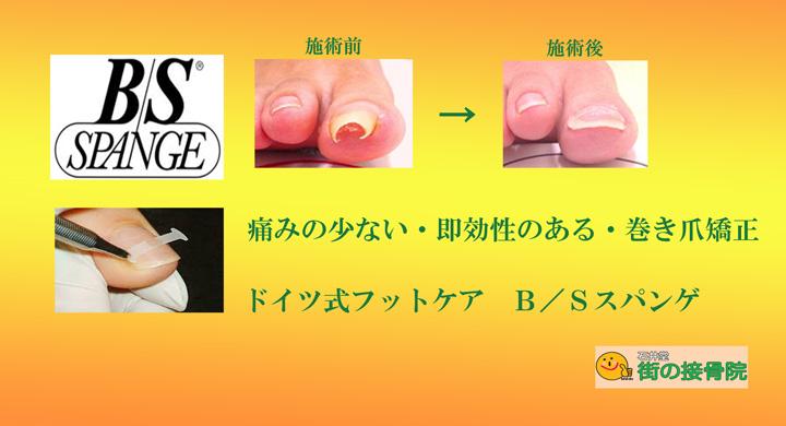 巻き爪矯正 BSスパンゲプレート法