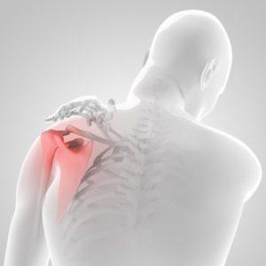 四十肩 五十肩 肩の痛み 杉並世田谷カイロプラクティック整体