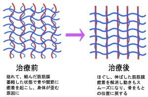 筋膜リリース 説明